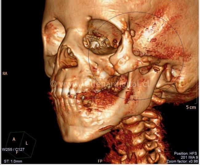 Scanner Cirugía Maxilofacial